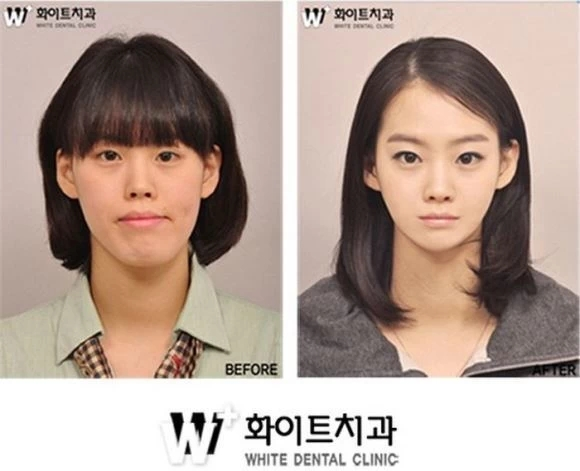 Korean Surgery Before and After